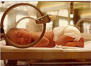 Neonatal_Jacoplane